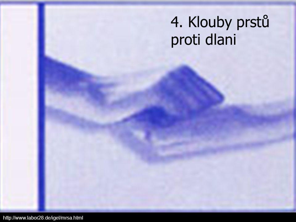 4. Klouby prstů proti dlani
