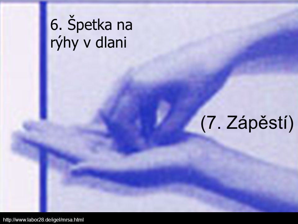 (7. Zápěstí) 6. Špetka na rýhy v dlani