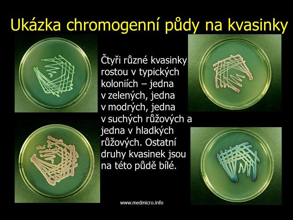 Ukázka chromogenní půdy na kvasinky