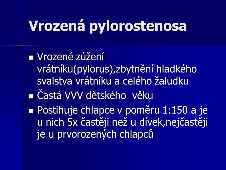 Vrozená pylorostenosa