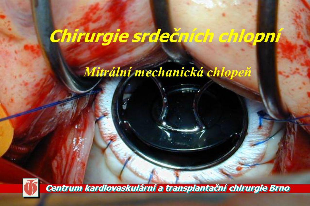 Chirurgie srdečních chlopní
