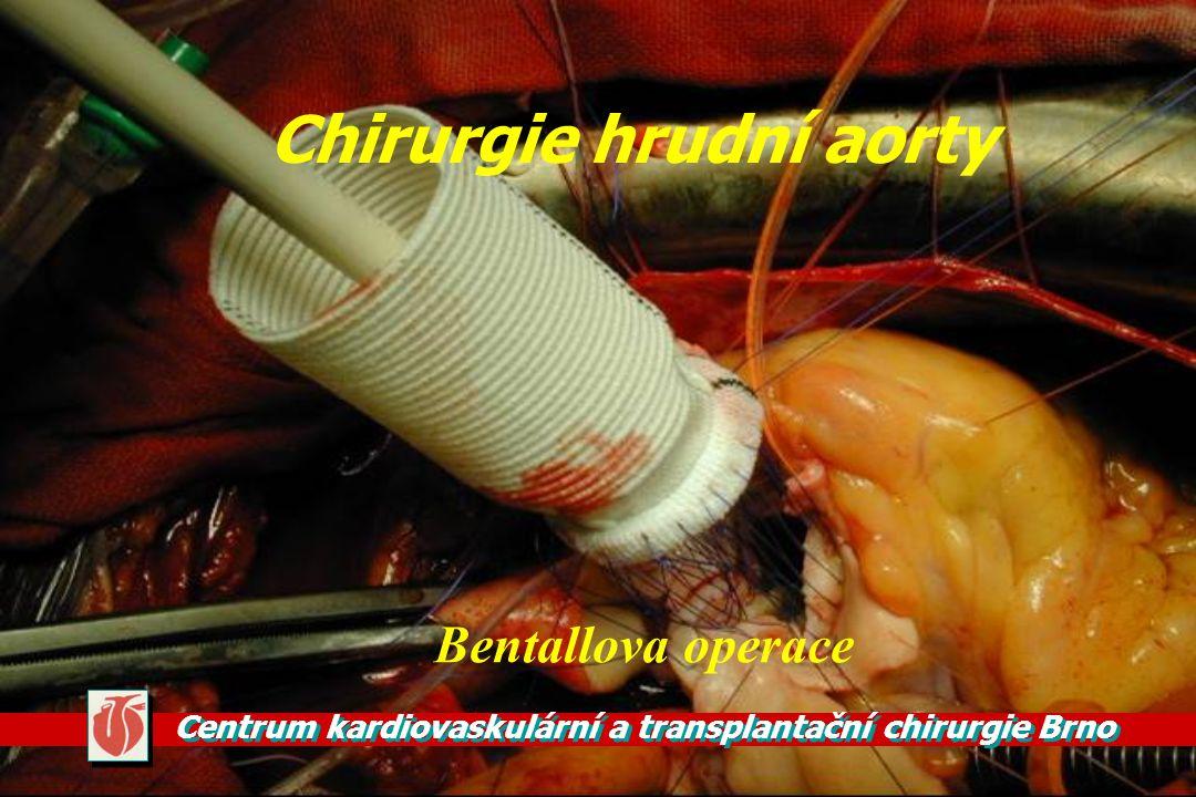 Chirurgie hrudní aorty