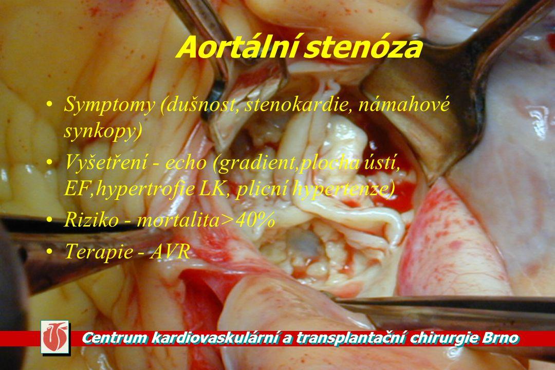 Aortální stenóza Symptomy (dušnost, stenokardie, námahové synkopy)