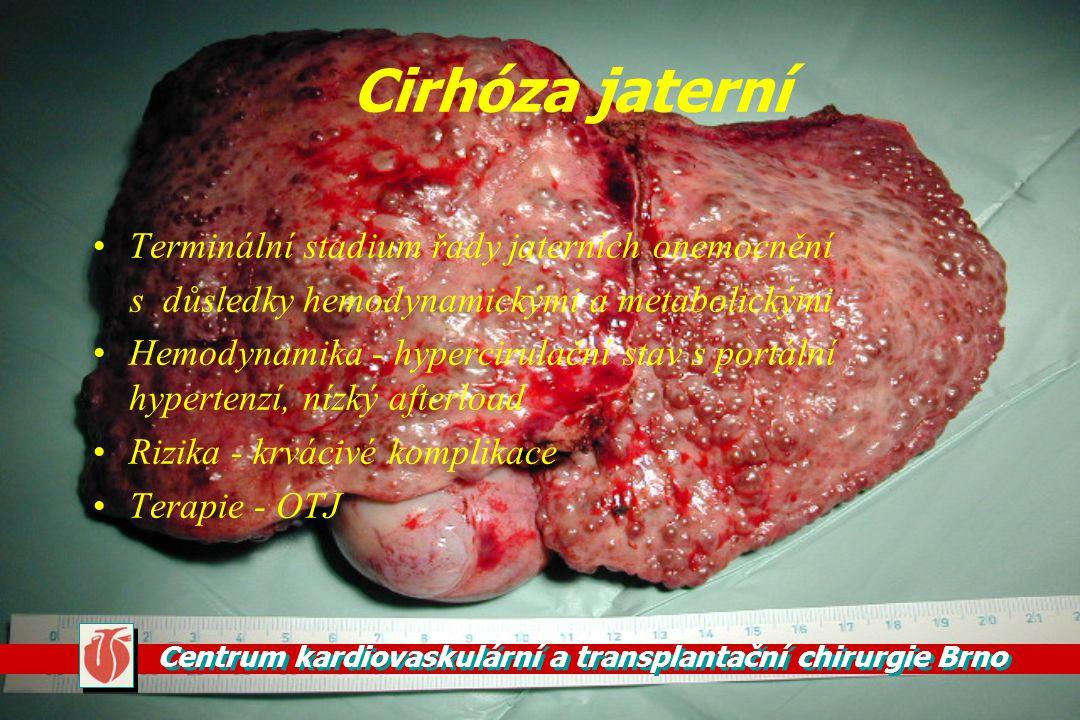 Cirhóza jaterní Terminální stadium řady jaterních onemocnění