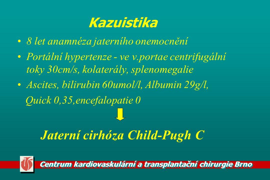 Jaterní cirhóza Child-Pugh C