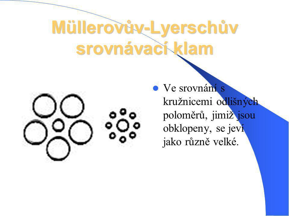 Müllerovův-Lyerschův srovnávací klam