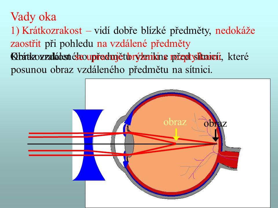 Vady oka 1) Krátkozrakost – vidí dobře blízké předměty, nedokáže