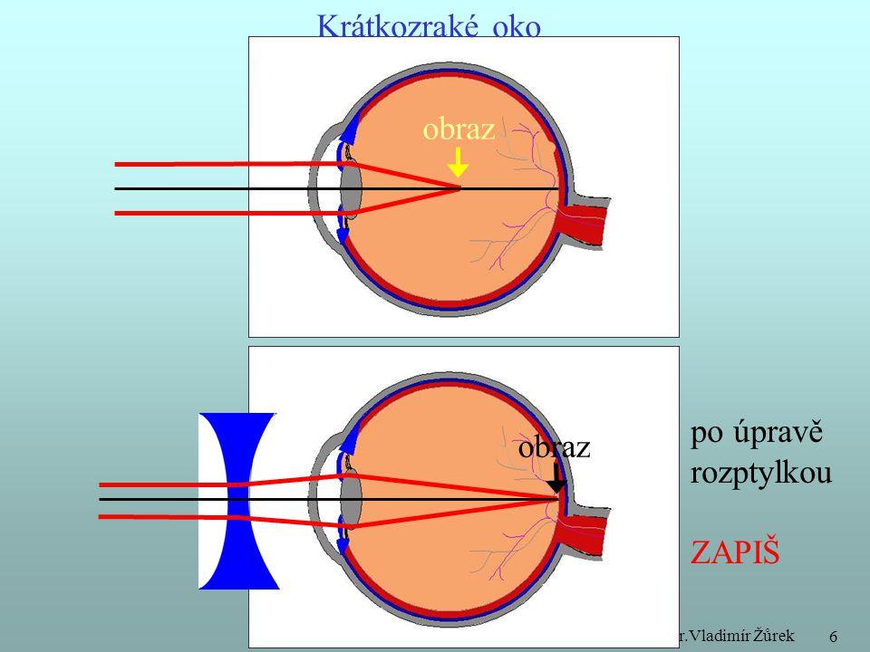 Krátkozraké oko obraz po úpravě obraz rozptylkou ZAPIŠ