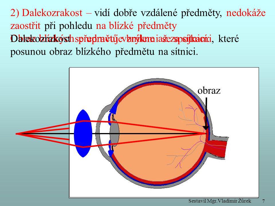 2) Dalekozrakost – vidí dobře vzdálené předměty, nedokáže