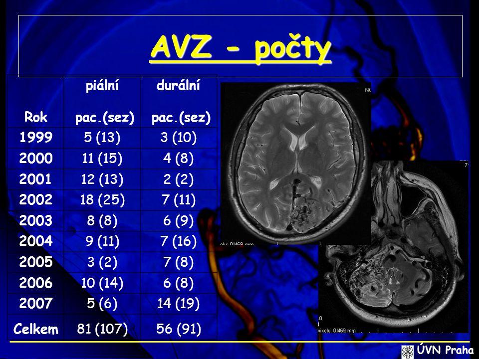 AVZ - počty piální durální Rok pac.(sez) 1999 5 (13) 3 (10) 2000