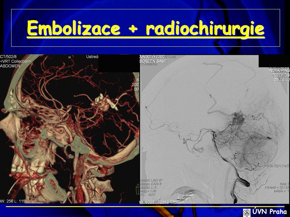 Embolizace + radiochirurgie