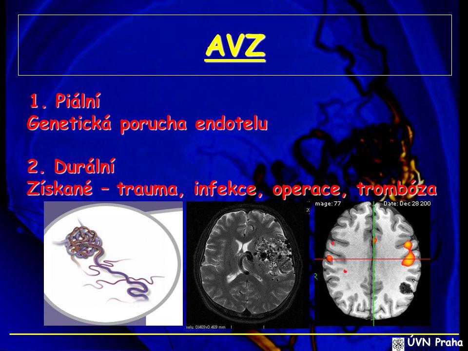 AVZ Genetická porucha endotelu 2. Durální