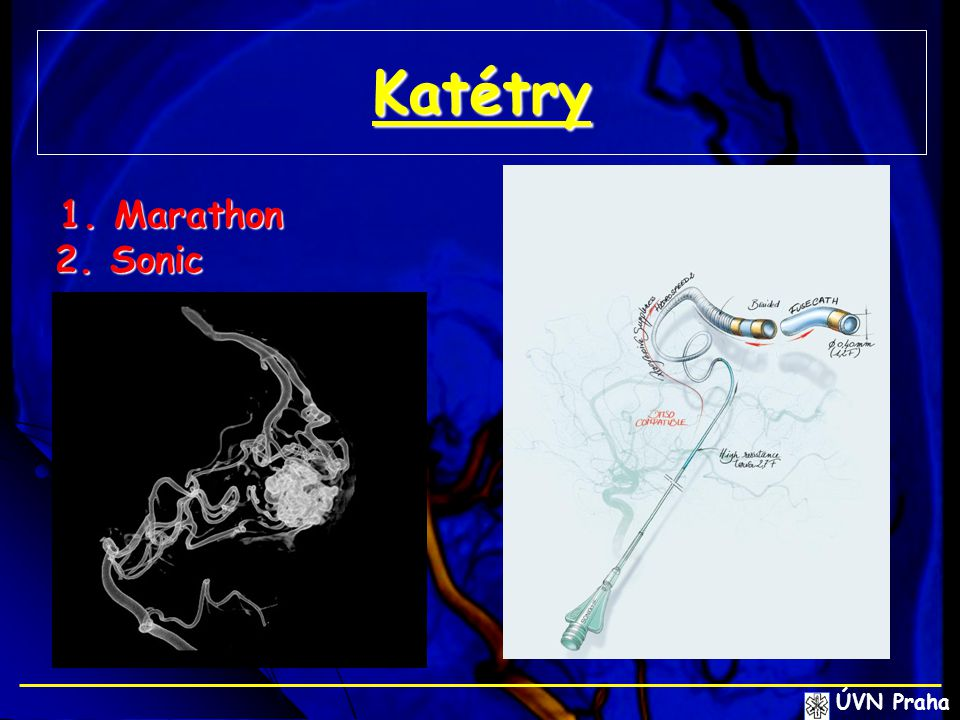 Katétry 1. Marathon 2. Sonic ÚVN Praha