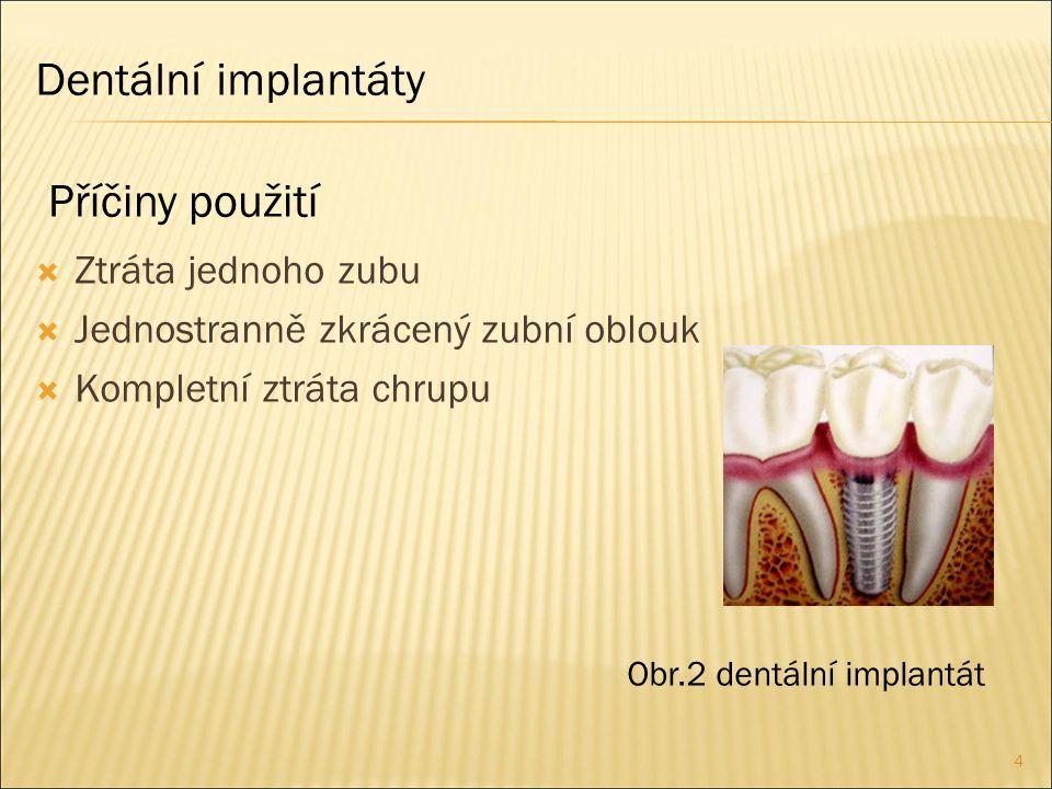Dentální implantáty Příčiny použití Ztráta jednoho zubu