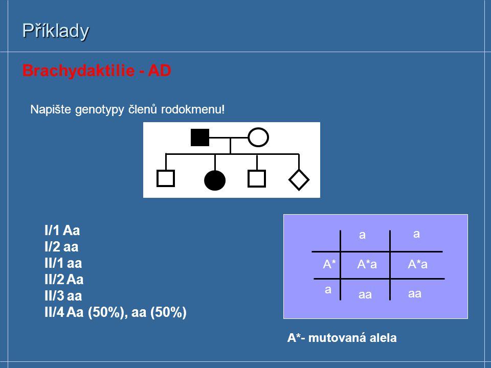 Příklady Brachydaktilie - AD I/1 Aa I/2 aa II/1 aa II/2 Aa II/3 aa