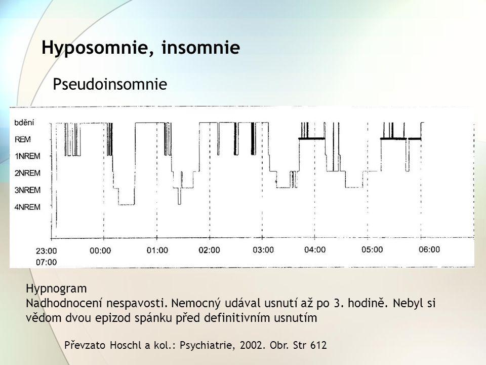 Hyposomnie, insomnie Pseudoinsomnie Hypnogram