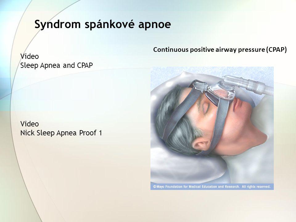 Syndrom spánkové apnoe