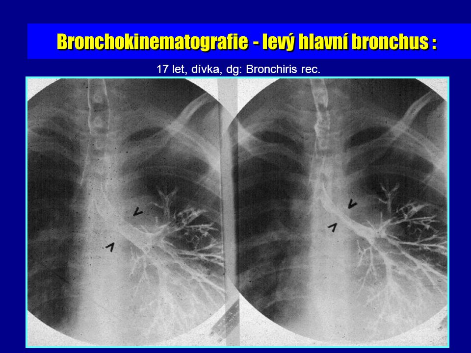 17 let, dívka, dg: Bronchiris rec.