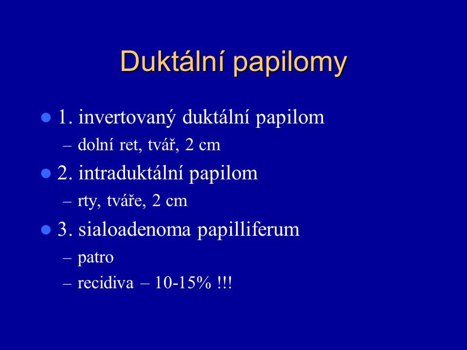 Duktální papilomy 1. invertovaný duktální papilom