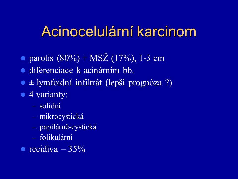 Acinocelulární karcinom