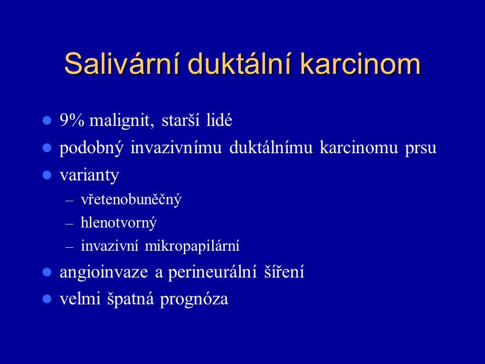 Salivární duktální karcinom