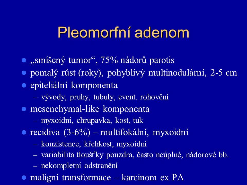 """Pleomorfní adenom """"smíšený tumor , 75% nádorů parotis"""