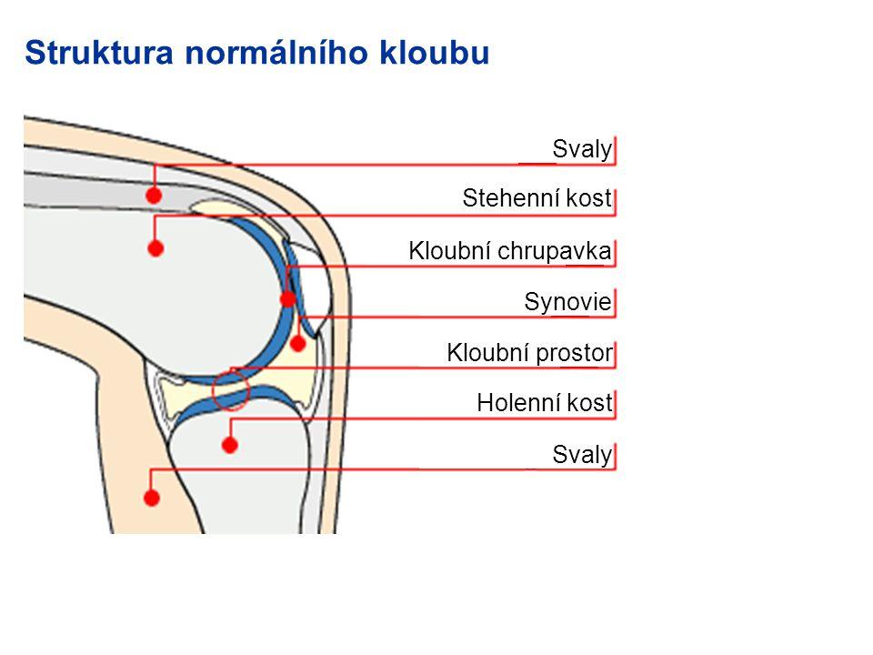 Struktura normálního kloubu