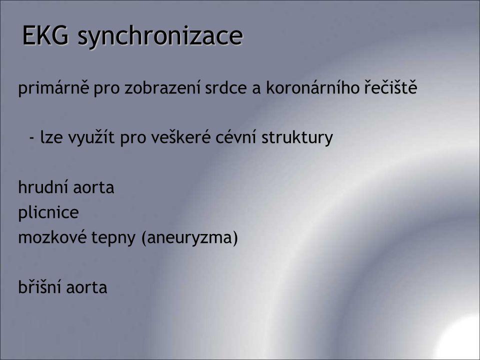 EKG synchronizace primárně pro zobrazení srdce a koronárního řečiště