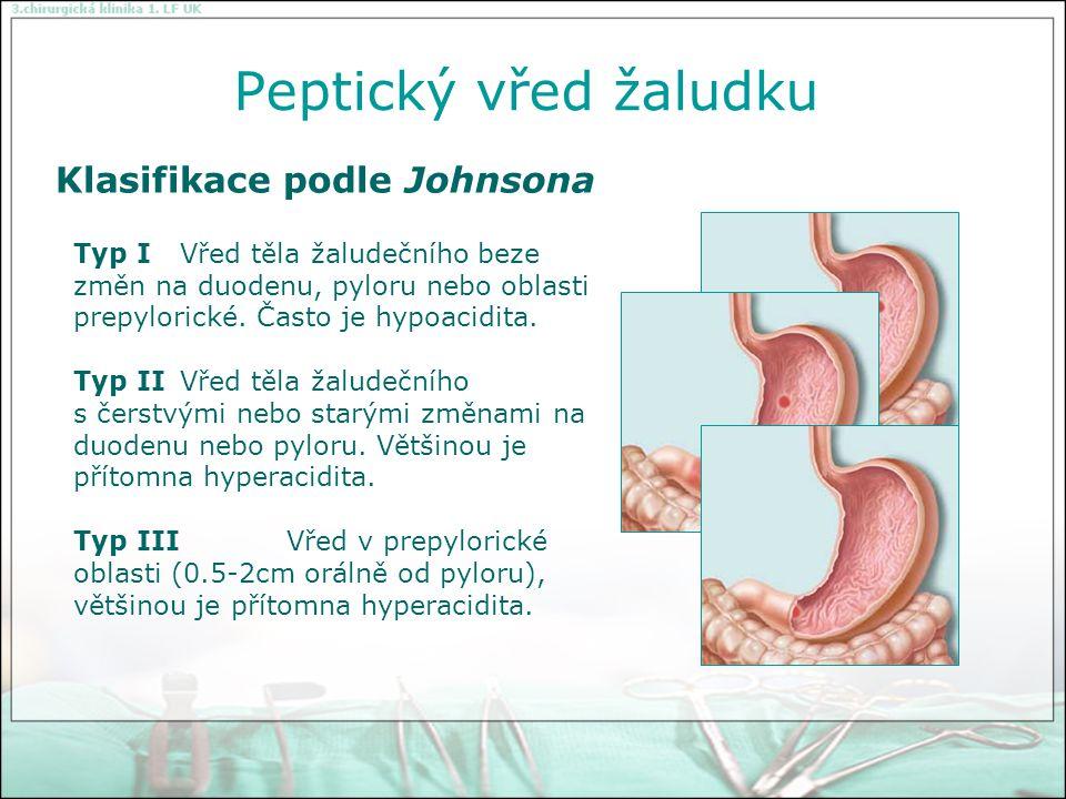 Peptický vřed žaludku Klasifikace podle Johnsona