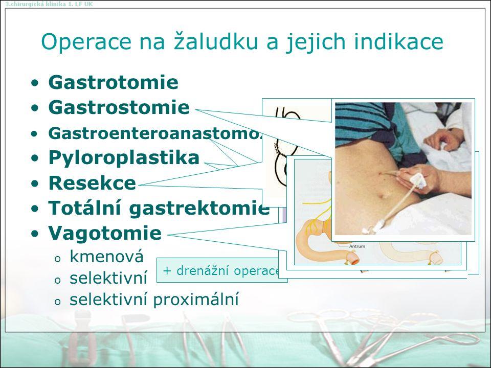 Operace na žaludku a jejich indikace