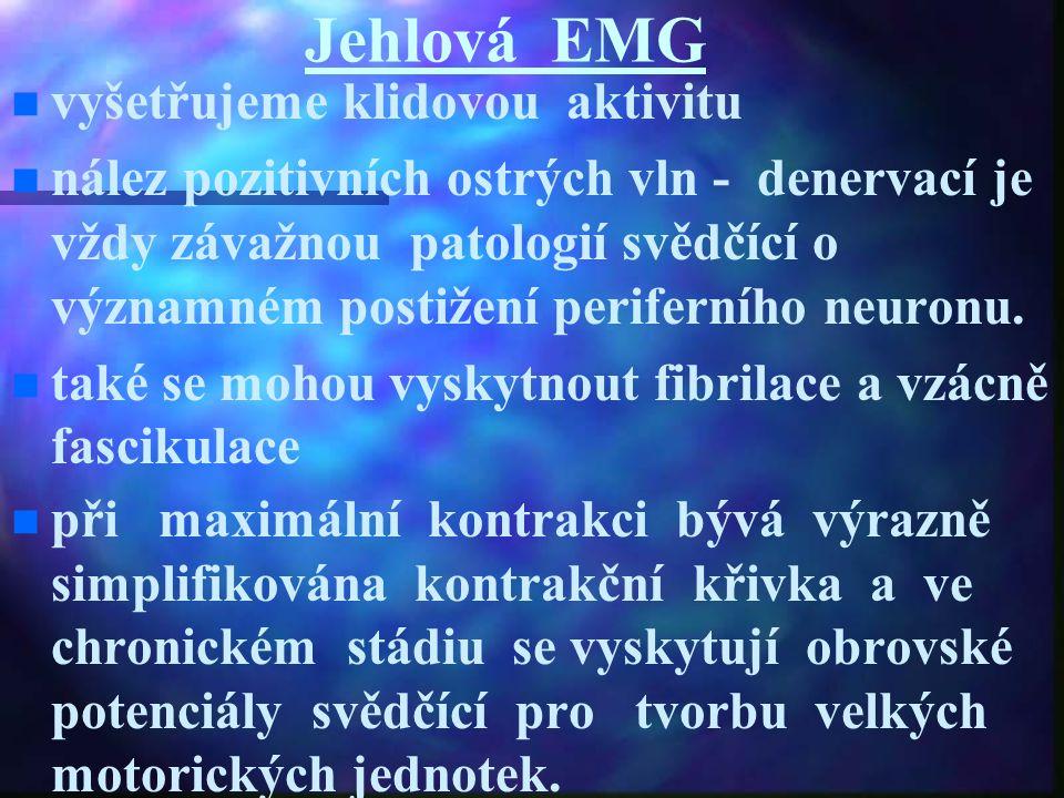 Jehlová EMG vyšetřujeme klidovou aktivitu