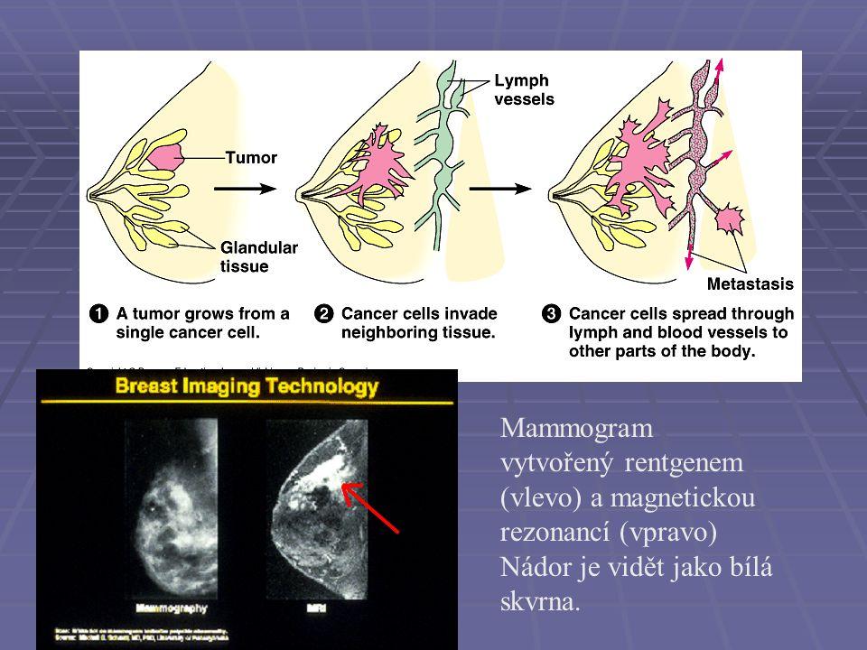 Mammogram vytvořený rentgenem (vlevo) a magnetickou rezonancí (vpravo)