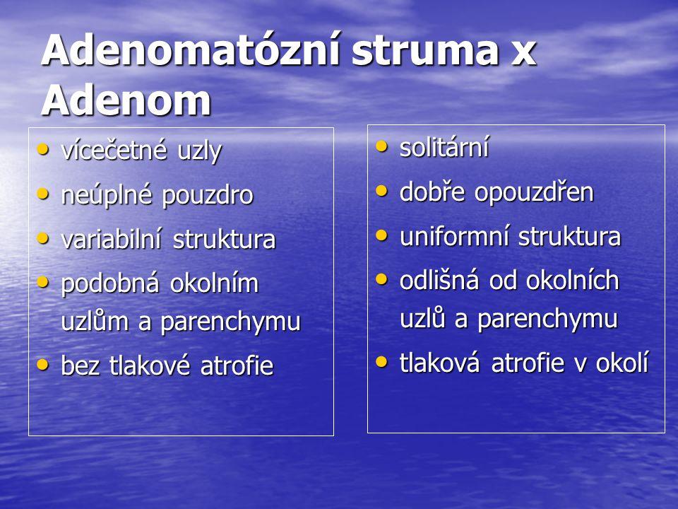 Adenomatózní struma x Adenom