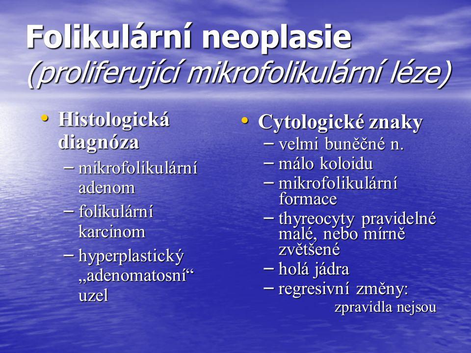Folikulární neoplasie (proliferující mikrofolikulární léze)