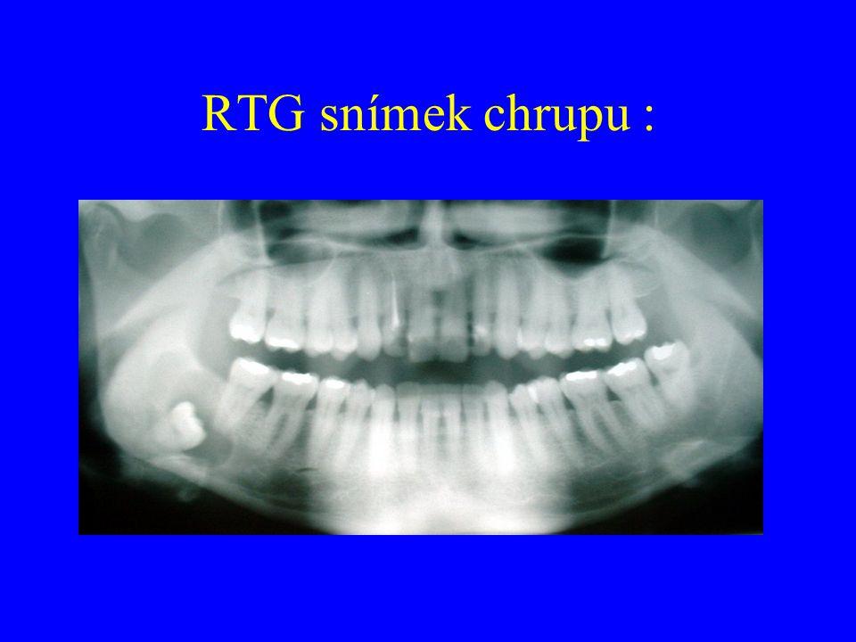 RTG snímek chrupu :