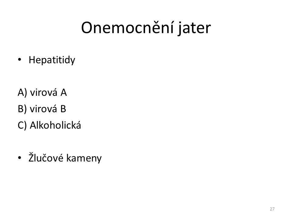 Onemocnění jater Hepatitidy A) virová A B) virová B C) Alkoholická