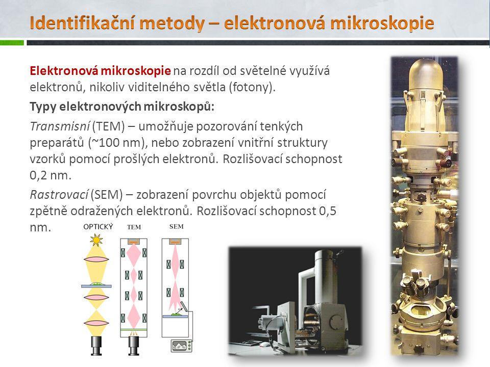 Identifikační metody – elektronová mikroskopie