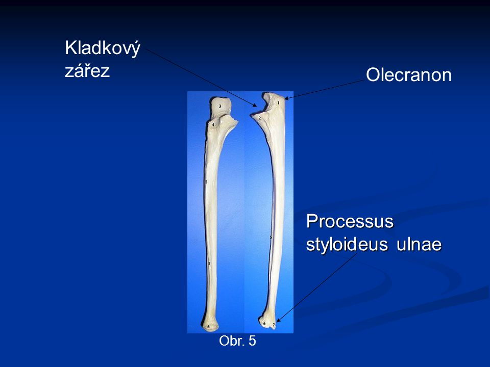 Processus styloideus ulnae