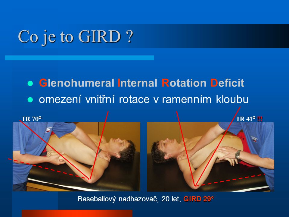 Co je to GIRD Glenohumeral Internal Rotation Deficit