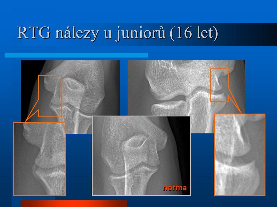 RTG nálezy u juniorů (16 let)