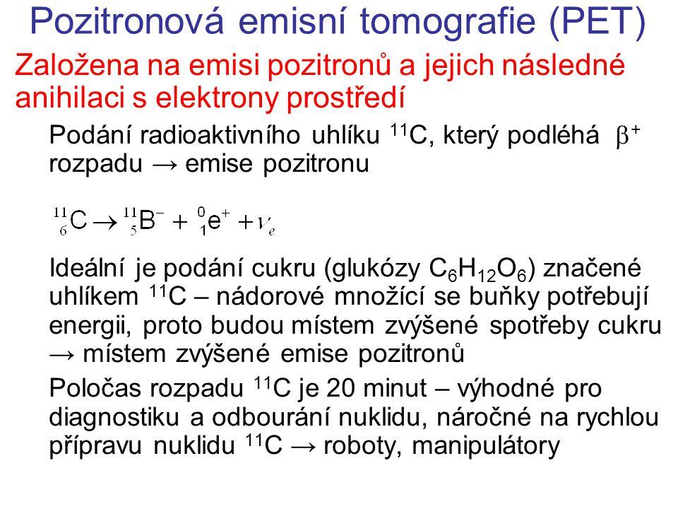 Pozitronová emisní tomografie (PET)