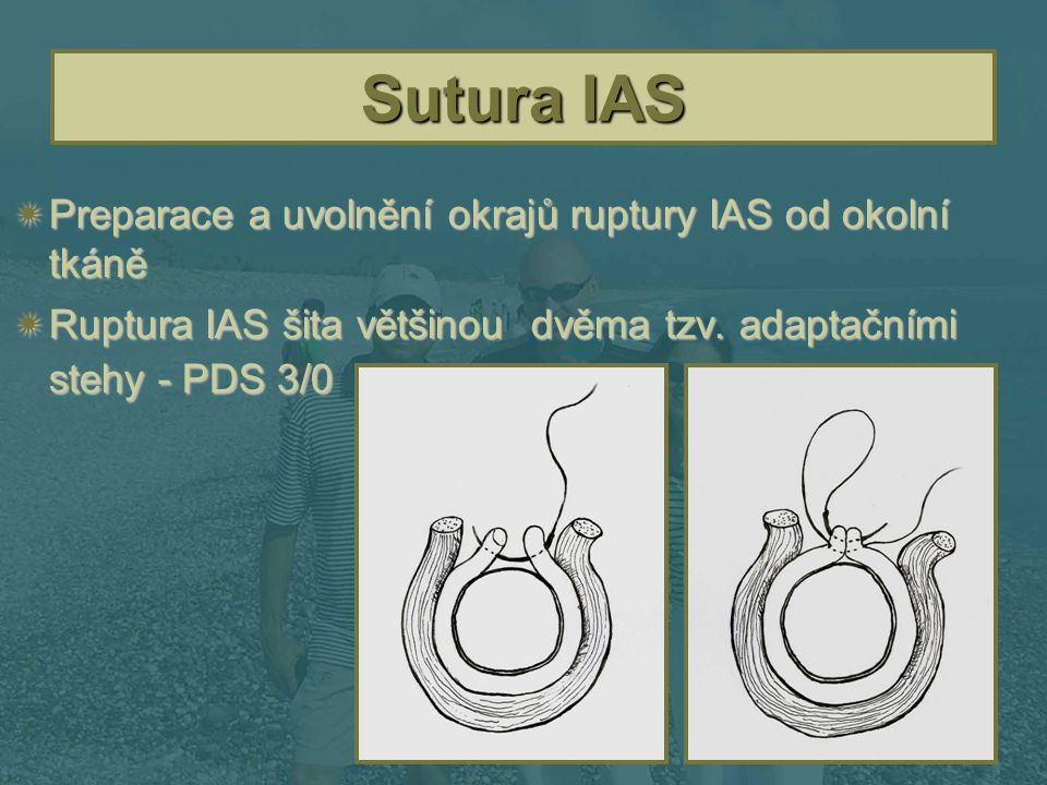 Sutura IAS Preparace a uvolnění okrajů ruptury IAS od okolní tkáně