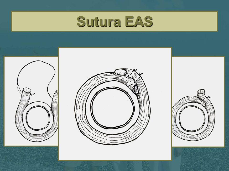 Sutura EAS