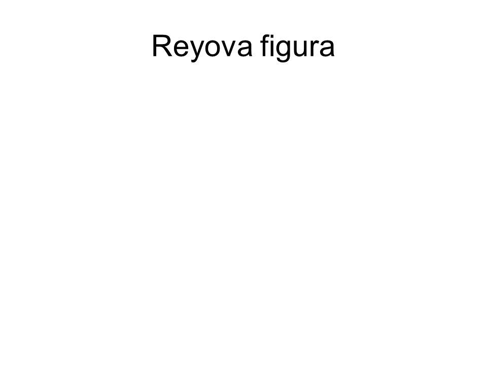 Reyova figura