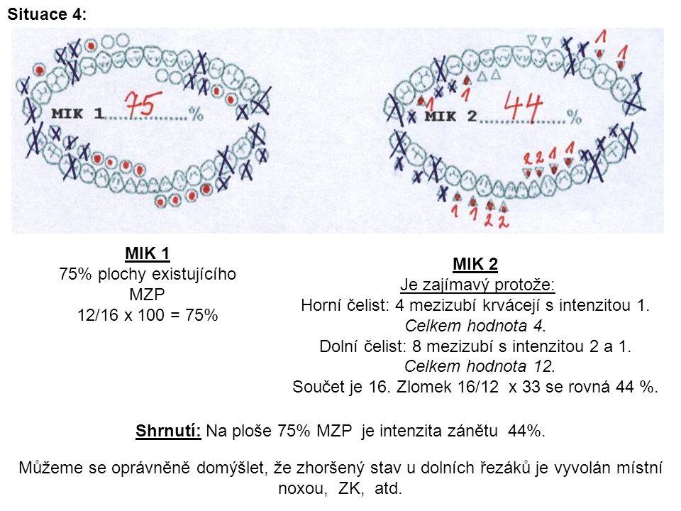75% plochy existujícího MZP 12/16 x 100 = 75% MIK 2