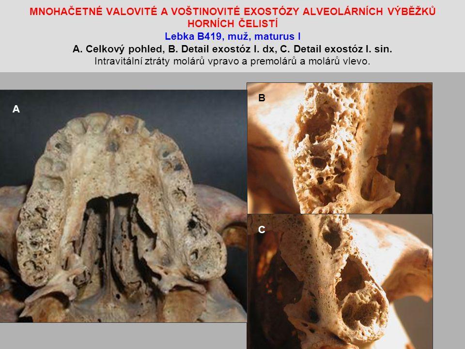 MNOHAČETNÉ VALOVITÉ A VOŠTINOVITÉ EXOSTÓZY ALVEOLÁRNÍCH VÝBĚŽKŮ HORNÍCH ČELISTÍ Lebka B419, muž, maturus I A. Celkový pohled, B. Detail exostóz l. dx, C. Detail exostóz l. sin. Intravitální ztráty molárů vpravo a premolárů a molárů vlevo.