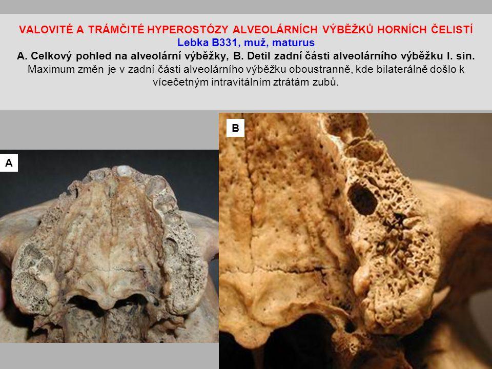 VALOVITÉ A TRÁMČITÉ HYPEROSTÓZY ALVEOLÁRNÍCH VÝBĚŽKŮ HORNÍCH ČELISTÍ Lebka B331, muž, maturus A. Celkový pohled na alveolární výběžky, B. Detil zadní části alveolárního výběžku l. sin. Maximum změn je v zadní části alveolárního výběžku oboustranně, kde bilaterálně došlo k vícečetným intravitálním ztrátám zubů.