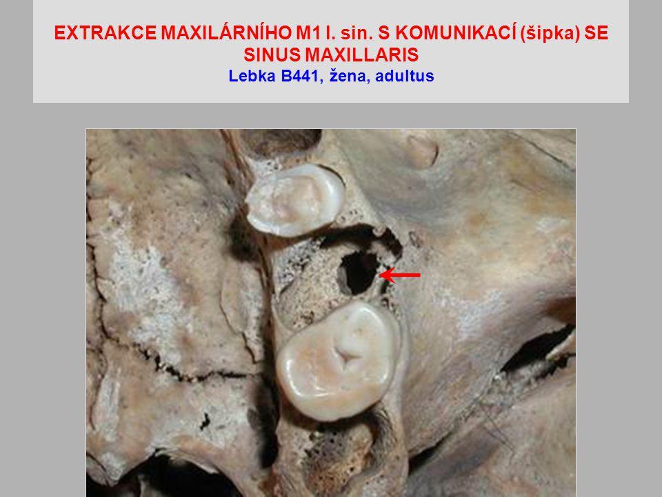 EXTRAKCE MAXILÁRNÍHO M1 l. sin