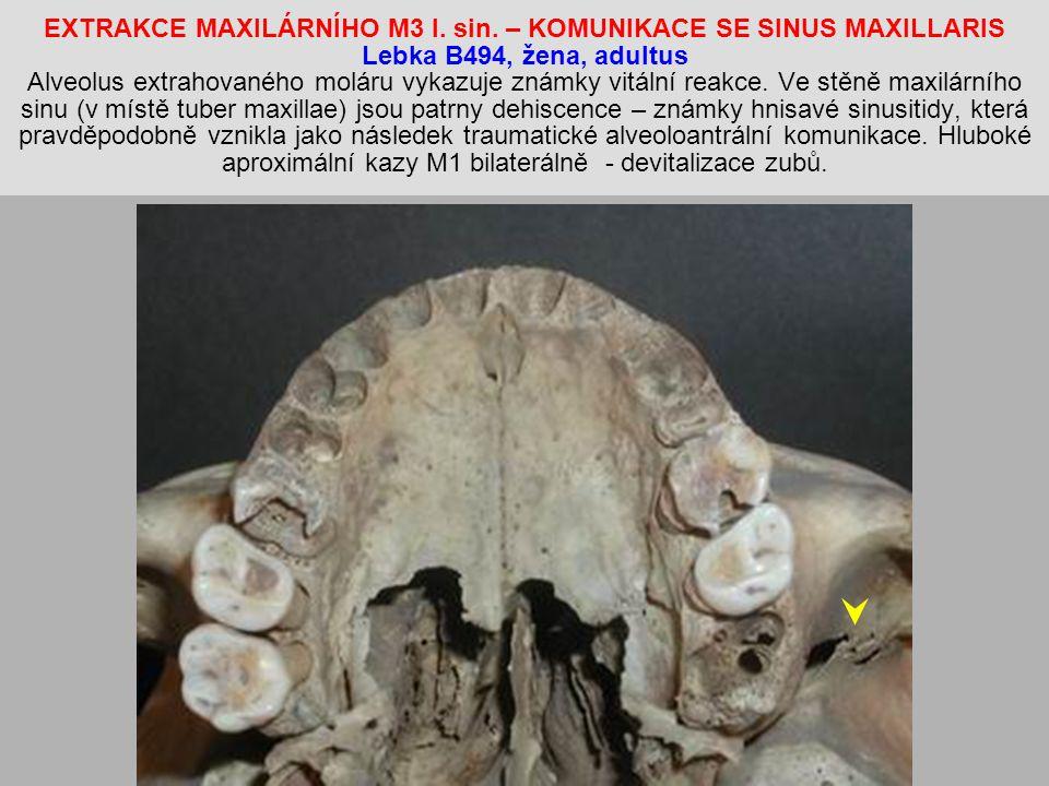 EXTRAKCE MAXILÁRNÍHO M3 l. sin
