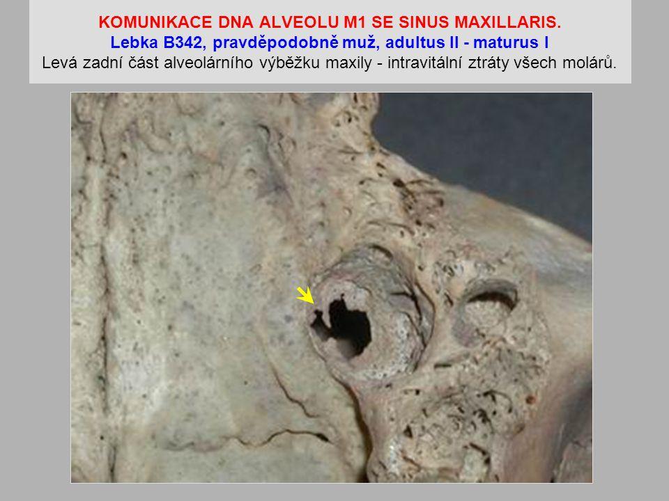 KOMUNIKACE DNA ALVEOLU M1 SE SINUS MAXILLARIS